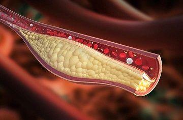 أفضل طريقة لـ خفض مستوى الكوليسترول (1)