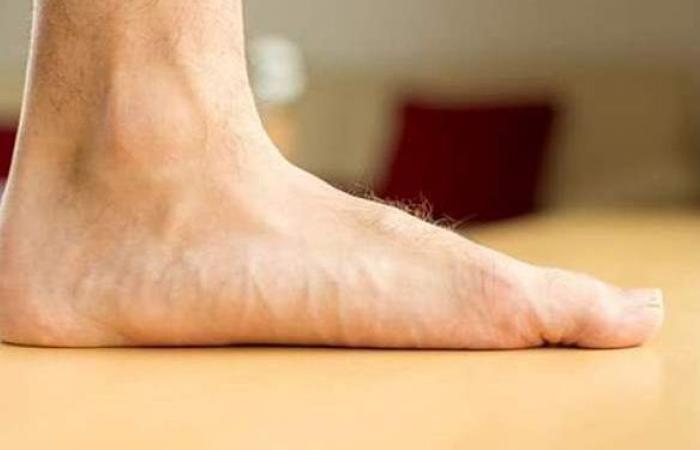 أعراض مرض تفلطح القدمين وطرق العلاج