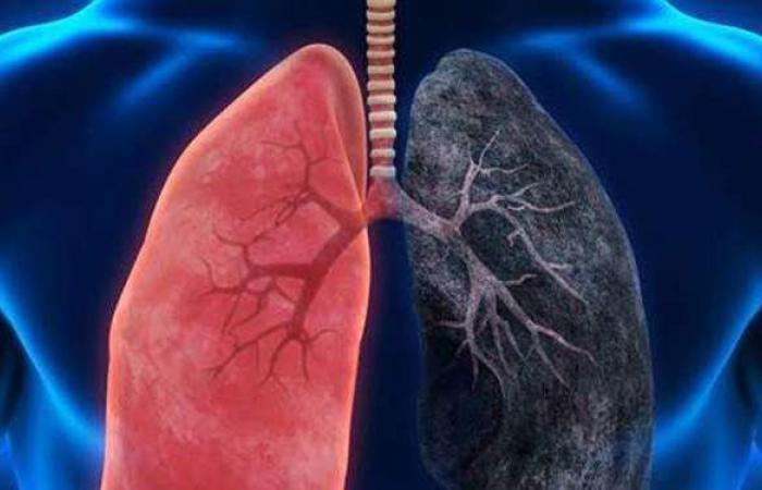 طبيب أورام: ٩٠% من حالات سرطان الرئة بسبب التدخين