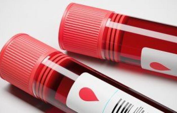 تحليل هرمون البرولاكتين يكشف عن مشاكل صحية للرجال والسيدات