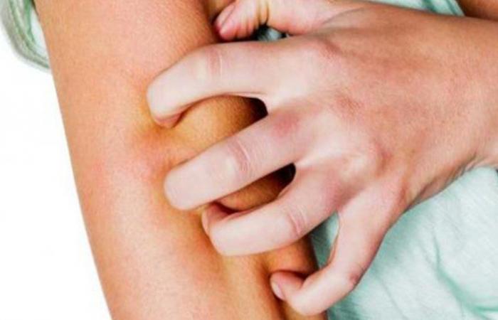 انتبه.. 4 تغييرات تظهر على الجلد تكشف عن الإصابة بكورونا