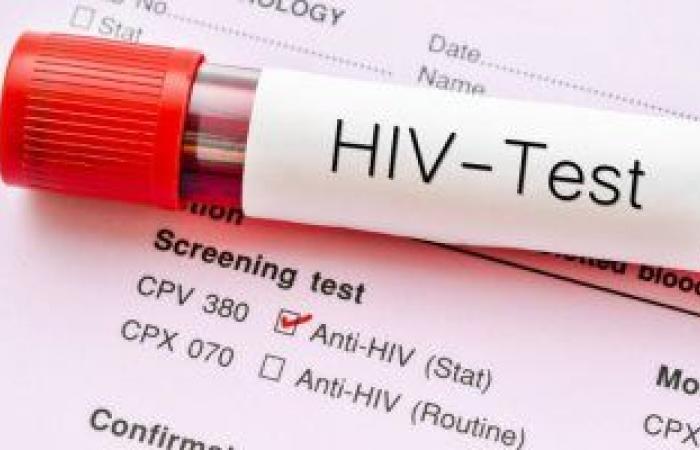 تعرف على تحاليل الدم المطلوبة لتشخيص فيروس نقص المناعة البشرية