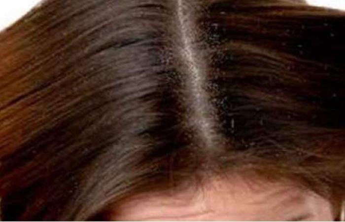 وصفات طبييعية للتخلص من قشرة الشعر بشكل نهائي