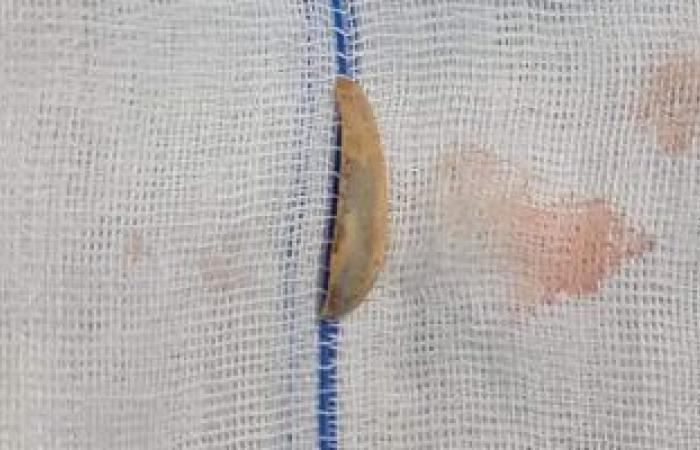 فريق طبى بمستشفى بنها الجامعى يستخرج قشرة لب ظلت شهرين بالقصبة الهوائية لطفل
