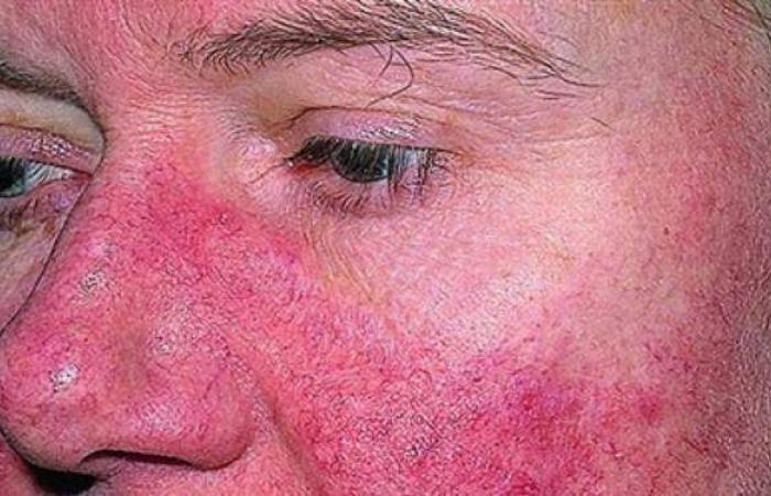 مرض الذئبة الحمراء.. تعرف على أسباب الإصابة والأعراض وطرق العلاج